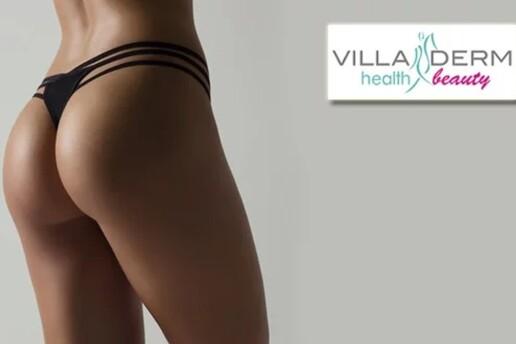 Muratpaşa Villa Derm Beauty Club'ta 9 Seanslık Popo Kaldırma Uygulaması
