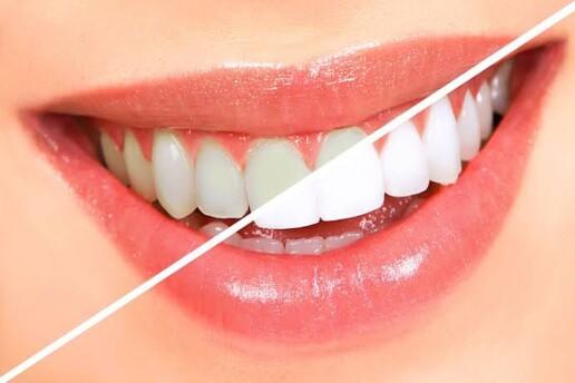 Taksim'deki Dentaxim Ağız ve Diş Sağlığı Polikliniği'nden Diş Temizletme ve Beyazlatma İşlemi