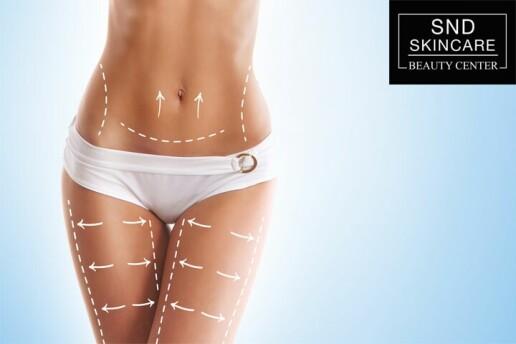 Snd Skincare Beauty Center'da Selülit ve Zayıflama Uygulamaları