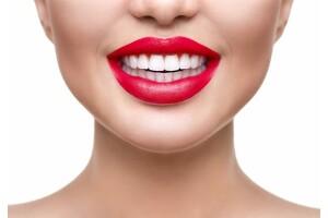 Dentprime'den Diş Beyazlatma ve Dental Bakım Uygulamaları
