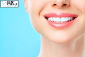 Dent For All Diş Beyazlatma Uygulaması